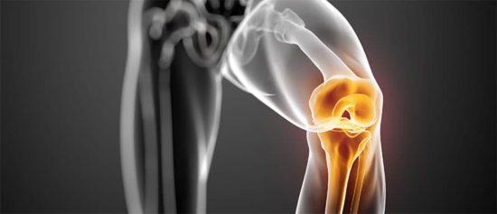 arthrose du genou illustration