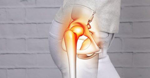 image arthrose hanche